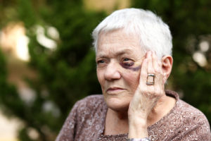 elderly woman with black eye holding hand to her eye